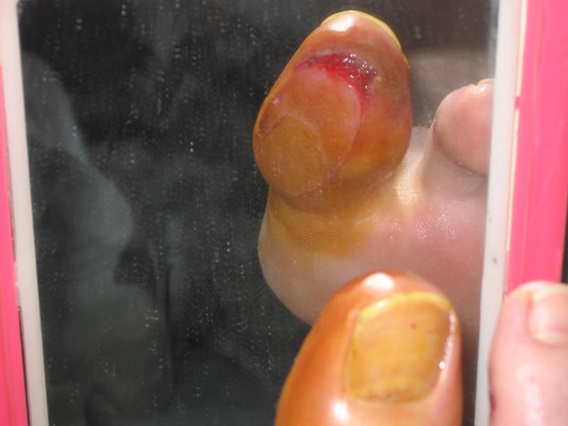 没事 (Mei Shi) No Problem: Infected Toe